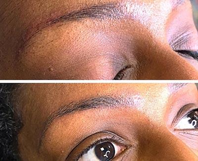 Microblading après une dépigmentation 49