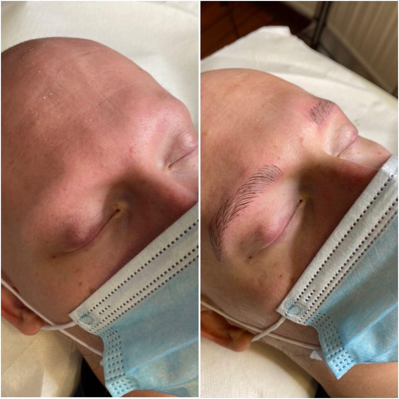 microblading homme perte des sourcils